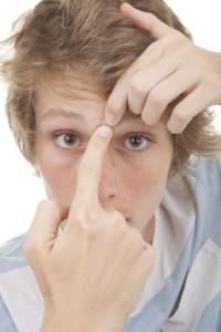 boutons d'acné et leurs causes