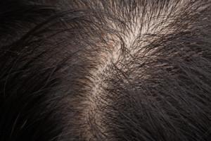 Prenez soin de vos cheveux avec la marque Forcapil