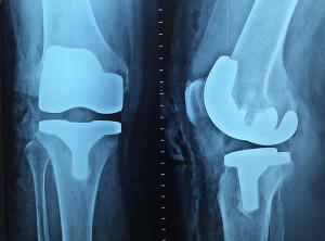 orthopedie_1