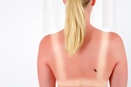 Coups de soleil et allergie