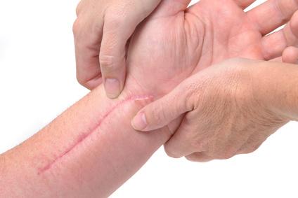 Les cicatrices peuvent être traitées de différentes manières