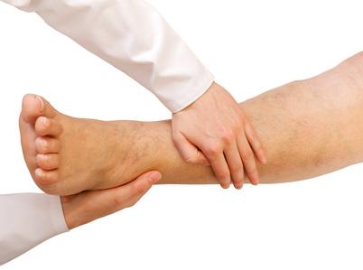 Les varices sont une hyperdilatation des vaisseaux sanguins qui donnent des sensations de jambes lourdes